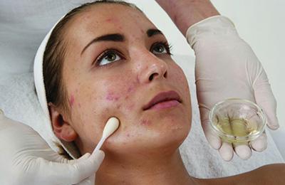 Нанесение на пораженные участки кожи