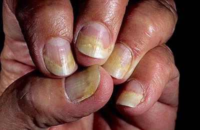 Истончение ногтевых пластин
