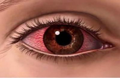 Воспаление глазных структур