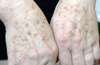 Псориаз причины диагностика и лечение. Кожные болезни