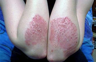Псориаз на локтях и коленях как и чем лечить мазями в домашних условиях