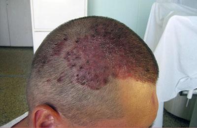 Область поражения кожных покровов