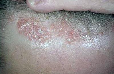 Артропатический Псориаз Симптомы