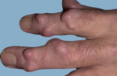 Болезнь суставов при псориазе
