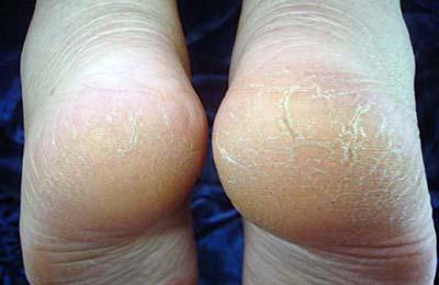 Как лечить трещины на пятках при псориазе