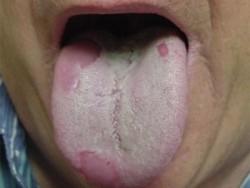 псориаз языка