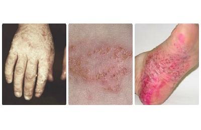 Экзема и дерматит: отличия и сходства