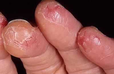 Поражение пальцев
