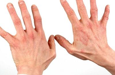 Поражение рук