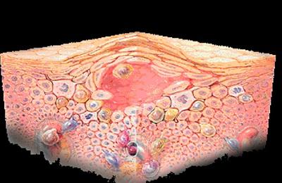 Поражения кожи