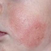Атопический дерматит фото на губах