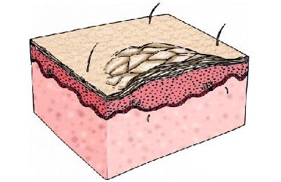 Лихенификация кожи