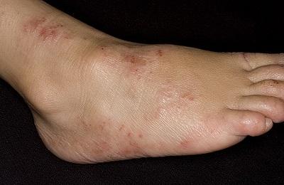 Дерматит ног