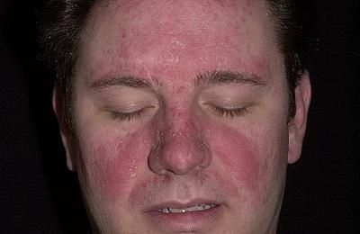 Народные средства при лечении аллергического дерматита