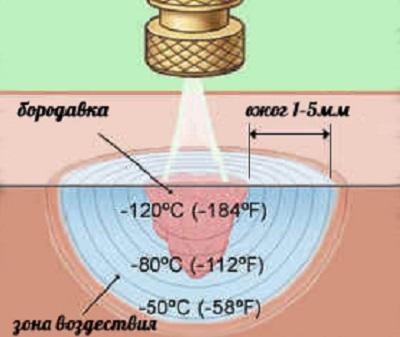 Удаление бородавки жидким азотом