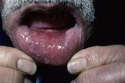 Инфицирование слизистой рта