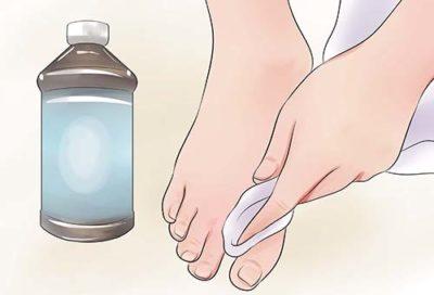 Обработка антисептиком