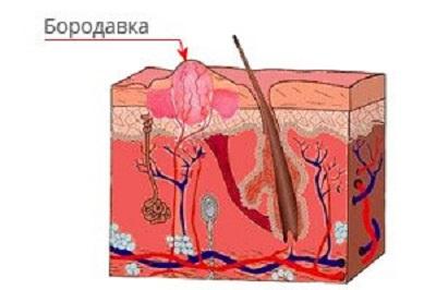 Шипица в слое кожи