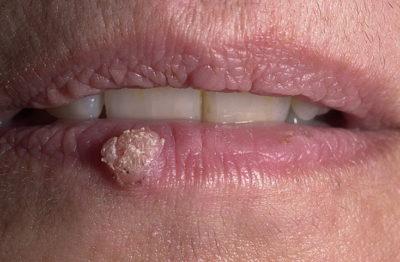 Вульгарная бородавка на губе