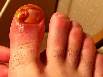 Гнойник на пальце ноги