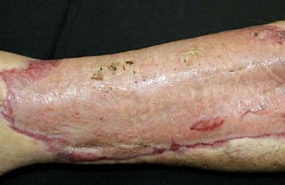 пересадка кожи