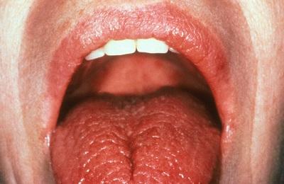 Ожог рта