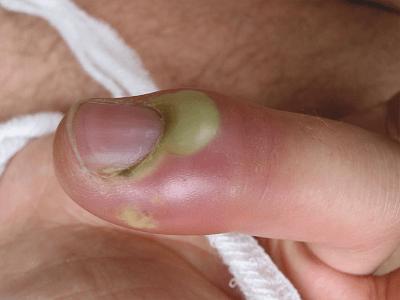 Фурункул ногтя
