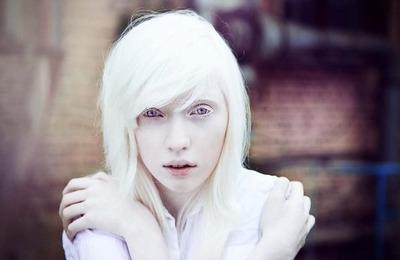 Причины альбинизма