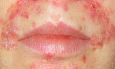 Воспаление вокруг губ