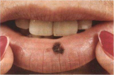 Пятно на губе