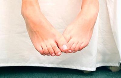 Как лечить пустулезный псориаз Цумбуша Барбера на пятках