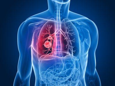 Злокачественное новообразование в легких