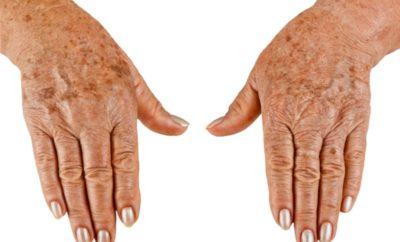 Темные точки на руках