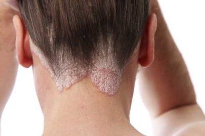 Воспаление кожи головы