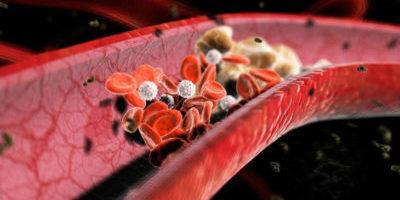 Образование тромбов