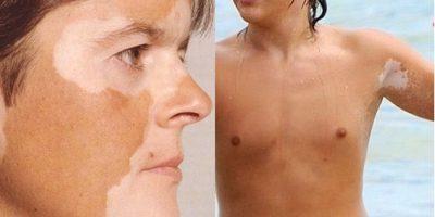 Проявление пятен на коже