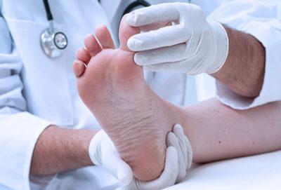 Осмотр ноги врачом