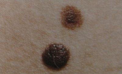 Папилломатозный внутридермальный меланоцитарный невус кожи фото