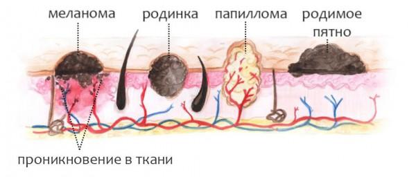 Отличие меланомы от родинок и папиллом