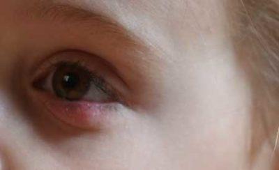Особенности халязиона у ребенка