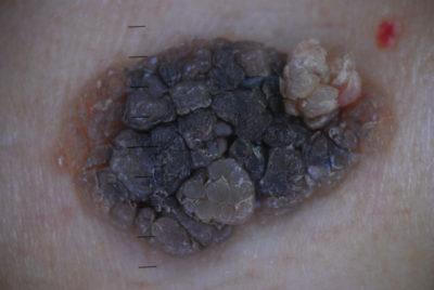 Роговая кератопапиллома