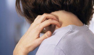 Зуд папилломы на шее