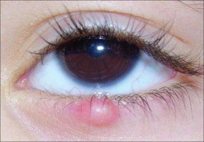 Последствия халязиона