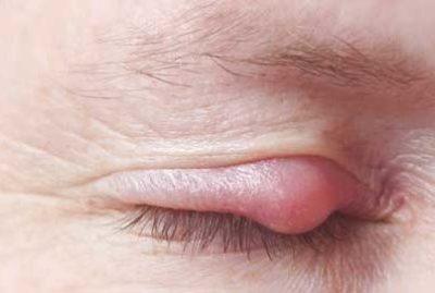 Симптомы внутреннего ячменя