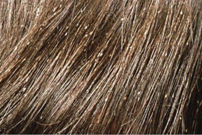 Вши в волосах