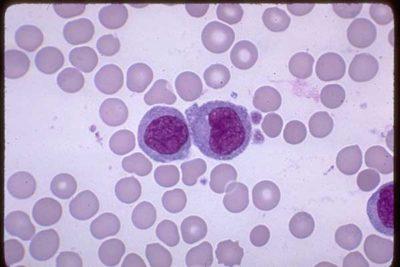 Кровь при инфекционном мононуклеозе