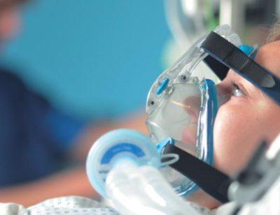 Искусственная вентиляция лёгких
