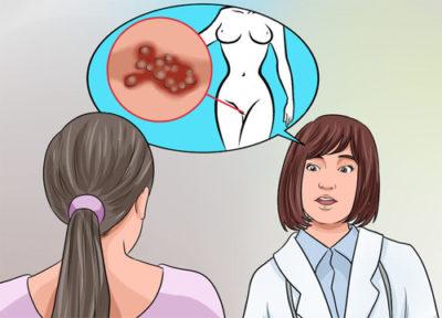 Менструальный герпес