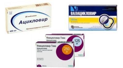 Лекарства от герпеса