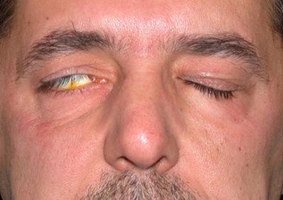 Паралич лицевых мышц